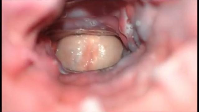 Inside Vagina Photo